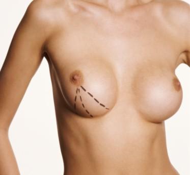 Mastopexy surgery in Medellín